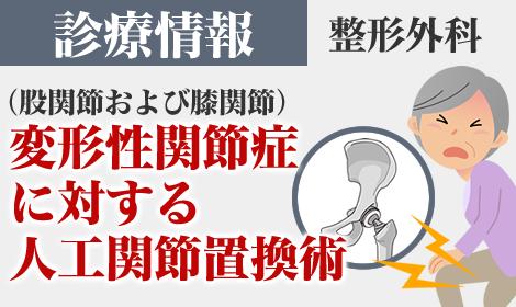 診療情報 変形性関節症に対する人工関節置換術(整形外科)