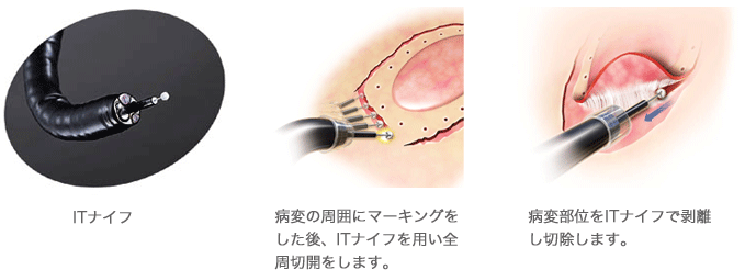 長津田厚生総合病院・胃癌治療