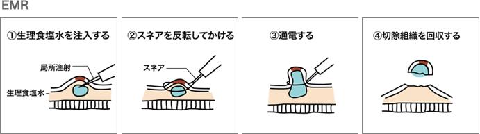 長津田厚生総合病院・内視鏡的粘膜切除術(EMR)