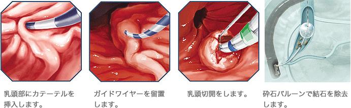 長津田厚生総合病院・総胆管結石