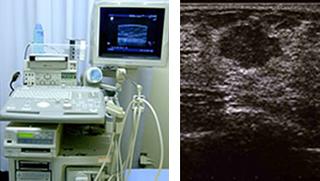 乳房超音波