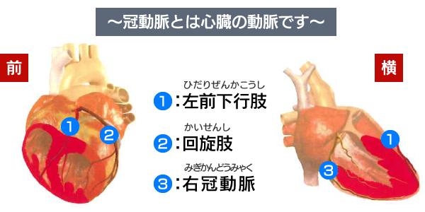 冠動脈とは心臓の動脈です