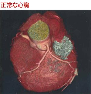 正常な心臓