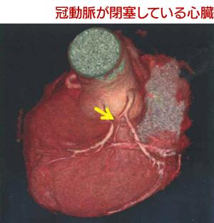 冠動脈が閉塞している心臓