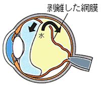 剥離した網膜