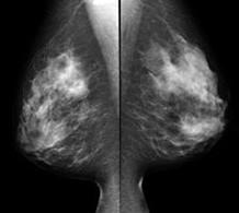 mammography-faq