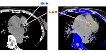 冠動脈硬化症検査(カルシウムスコア検査)